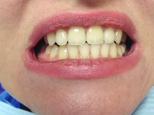 сколько стоит отбеливание зубов в нижнем новгороде