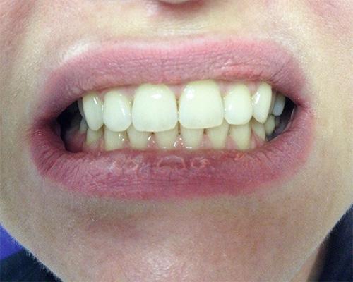 Как отбелить зубы 3 перекисью