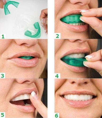 Домашнее отбеливание зубов opalescence с капами