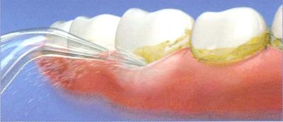 Удаление зубного налета в домашних условиях